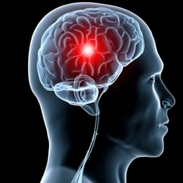 ictus raffreddare cervello