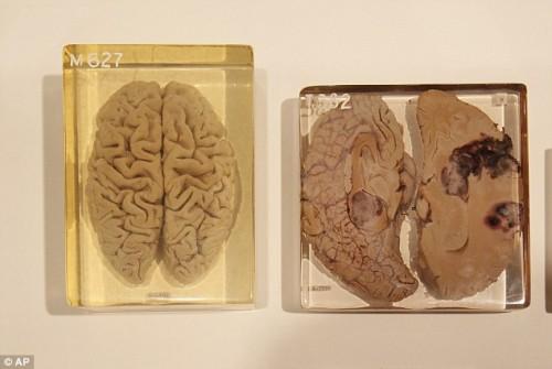 Il cervello di Einstein 02