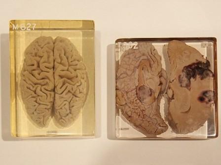 Il cervello di Einstein