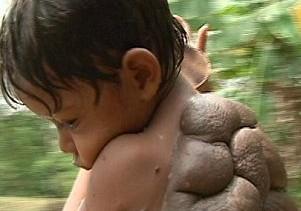 Colombia, il ragazzo tartaruga01