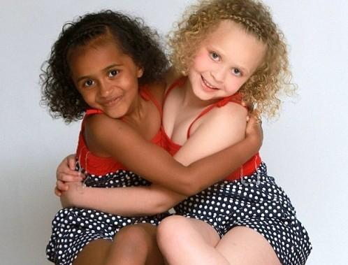 gemelle una bianca e una nera