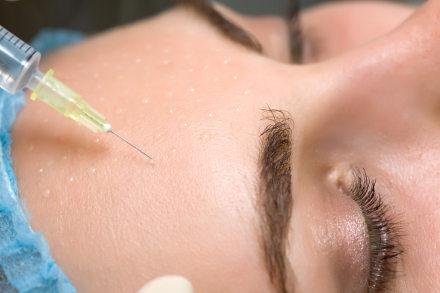 botox chirurgia plastica