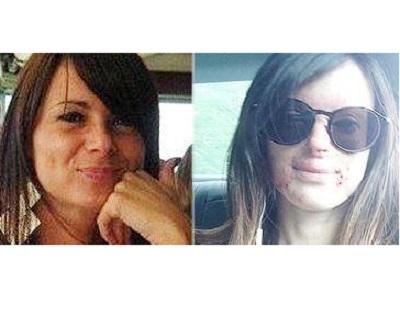"""Lucia Annibali, sfregiata da acido: """"Ecco il mio volto, nuovo inizio"""""""