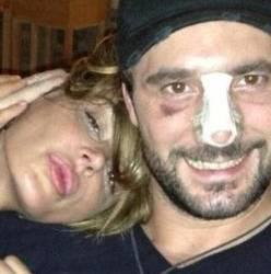"""Nina Moric e Dossi, feriti in incidente stradale: """"Dio ci ha protetti"""""""