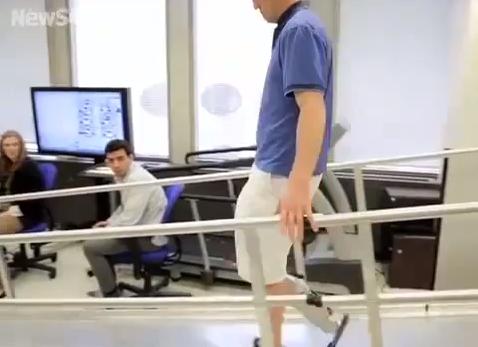 La prima gamba bionica impiantata ad un giovane di Chicago