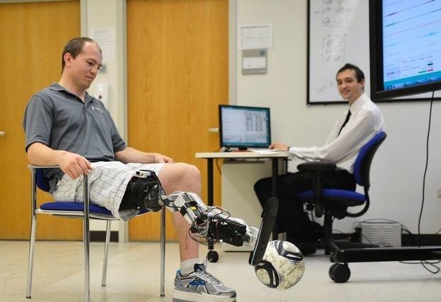 La gamba bionica funziona: per muoverla basta il pensiero