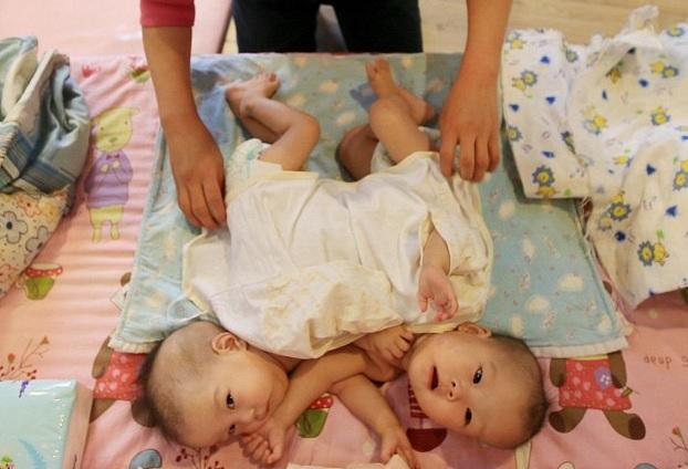 Cina gemelli siamesi abbandonati in un orfanotrofio 01