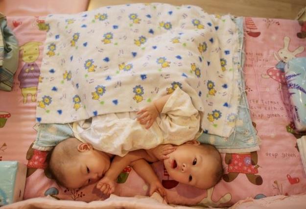 Cina gemelli siamesi abbandonati in un orfanotrofio 03