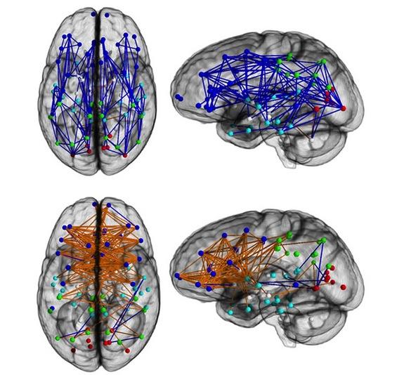 Uomini e donne, perché pensieri così diversi? La risposta nel cervello...