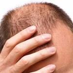 Calvizie, staminali per rigenerare bulbi piliferi e crescita capelli