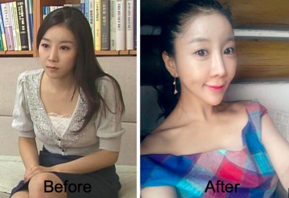 Plastica facciale rovina giornalista coreana: ora è orrenda (foto)