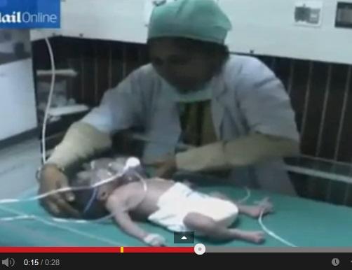 Troppo povera per fare ecografia: figlia nasce con 2 teste