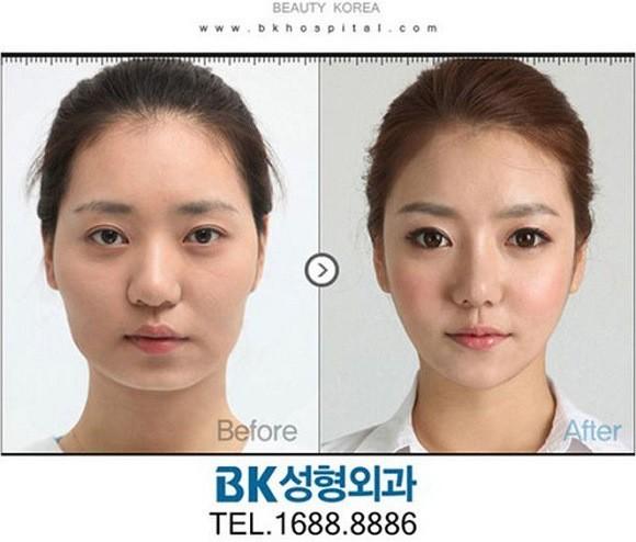 Chirirgia estetica e sudcoreane: le foto di incredibili trasformazioni