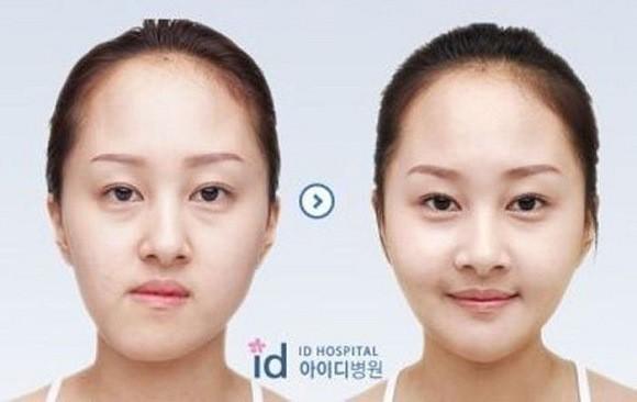 chirurgia_Sudcoreane_prima_dopo_12