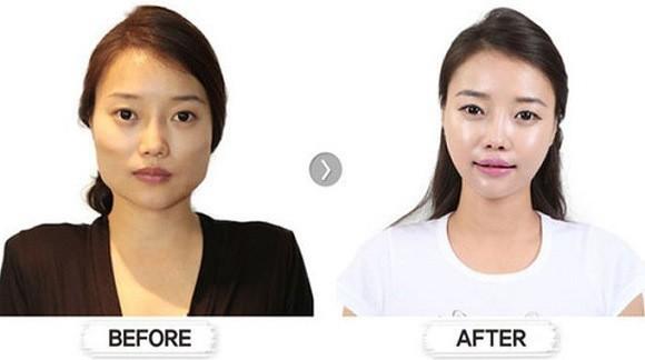 chirurgia_Sudcoreane_prima_dopo_13