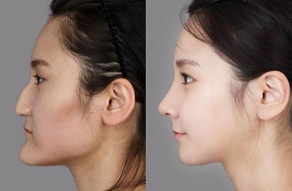 chirurgia_Sudcoreane_prima_dopo_14