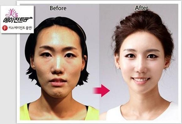 chirurgia_Sudcoreane_prima_dopo_15
