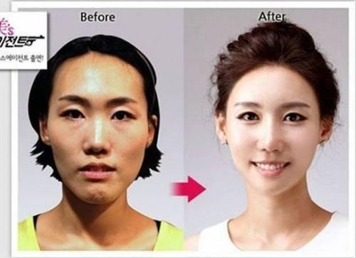 Chirirgia estetica e sudcoreane: le foto di trasformazioni incredibili