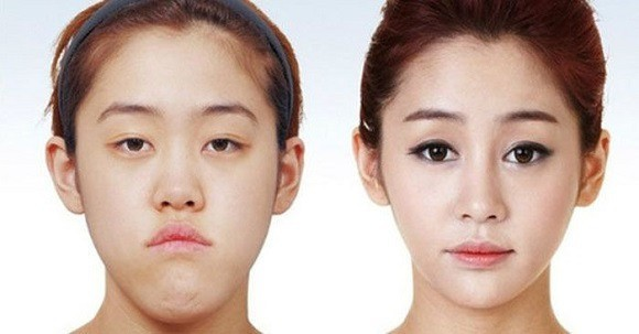 chirurgia_Sudcoreane_prima_dopo_16