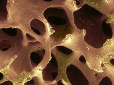 Osteoporosi, 80% delle donne over65 ne soffre e non lo sa