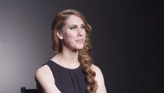 Modella con le acne