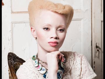 Thando Hopa, la modella albina che posa contro le discriminazioni06
