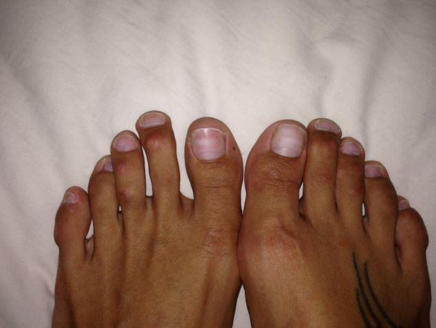 Chirurgia Cenerentola: tagliare e limare i piedi per scarpe aperte e tacchi