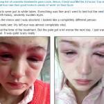 Katie, 16 anni, rischia di rimanere cieca per una tintura alle sopracciglia