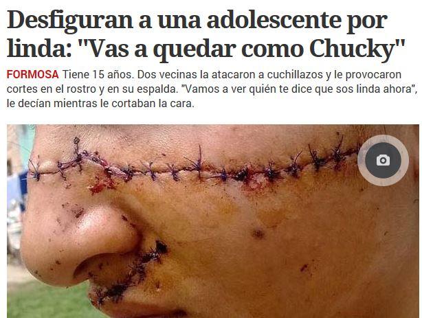 """Sfigurano la vicina di casa perché troppo bella: """"Diventerai come Chucky"""""""