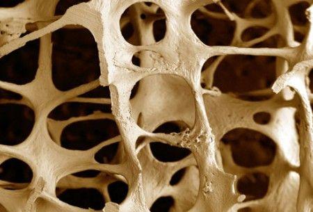 Osteoporosi non solo donna: ossa fragili anche per gli uomini