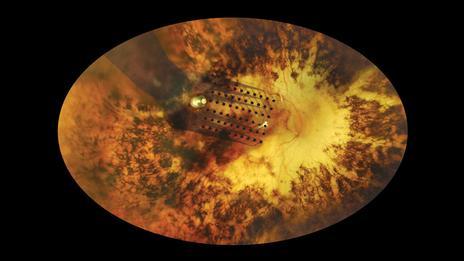 Cecità, arriva l'occhio bionico. E si torna a vedere
