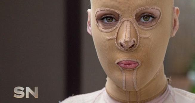 Data alle fiamme e sfigurata da donna gelosa: dopo 2 anni si leva la maschera