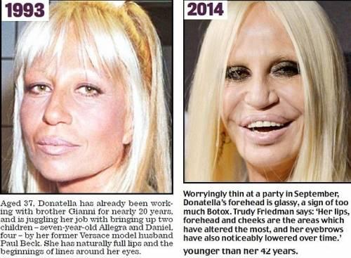 Donatella Versace e chirurgia plastica: l'incredibile ...