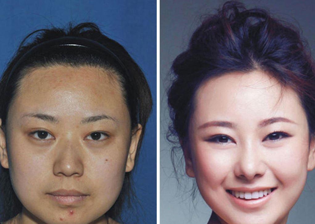 Sud Corea: donne rifatte al punto da non essere più riconoscibili (FOTO)