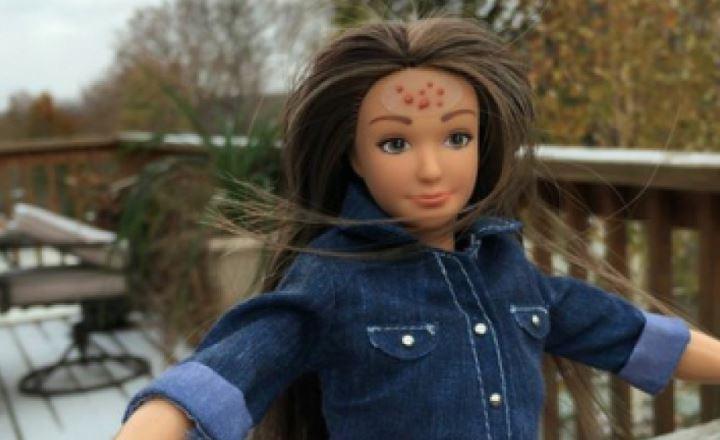 Cellulite, acne e smagliature: la nuova generazione di Barbie FOTO