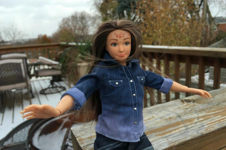 Cellulite, acne e smagliature: la nuova generazione di bambole FOTO