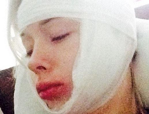 Valeria Lukyanova, la Barbie umana, aggredita e picchiata (FOTO)