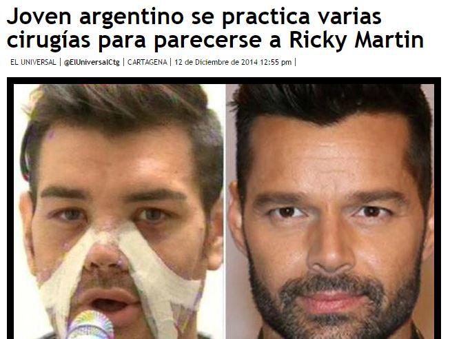 Si sottopone a vari interventi di chirurgia per assomigliare a Ricky Martin FOTO