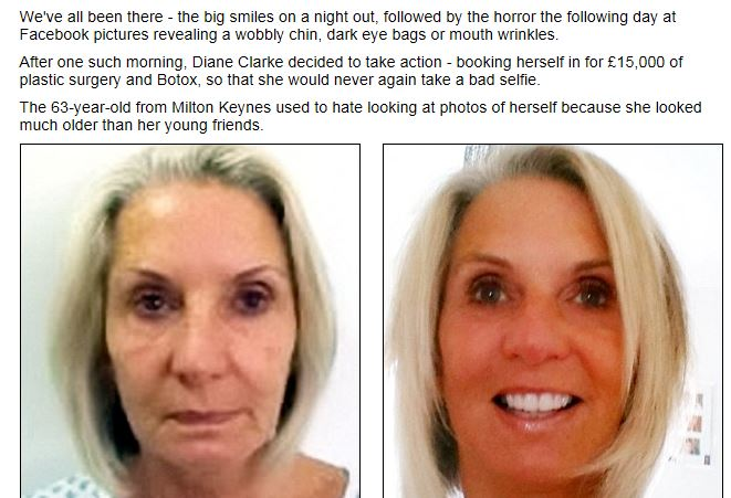 Spende 19mila euro in chirurgia per un viso a prova di selfie FOTO