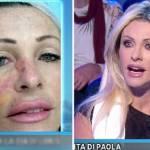 """Paola Ferrari confessa: """"Un tumore mi stava mangiando il viso"""" FOTO"""