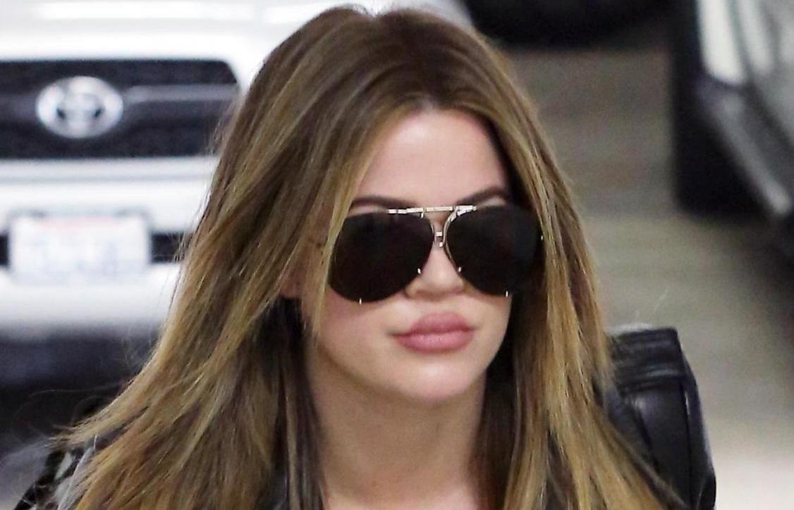Khloe Kardashian si è rifatta le labbra12