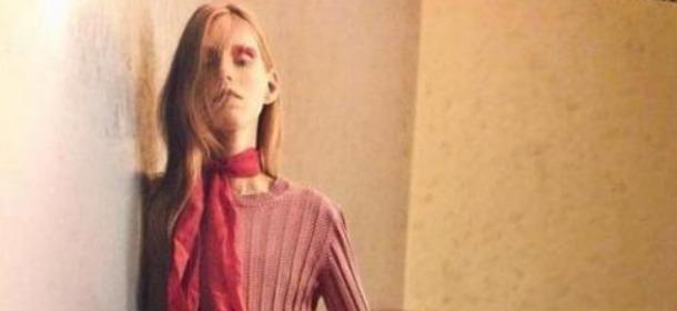 Modella anoressica su Cover Magazine02