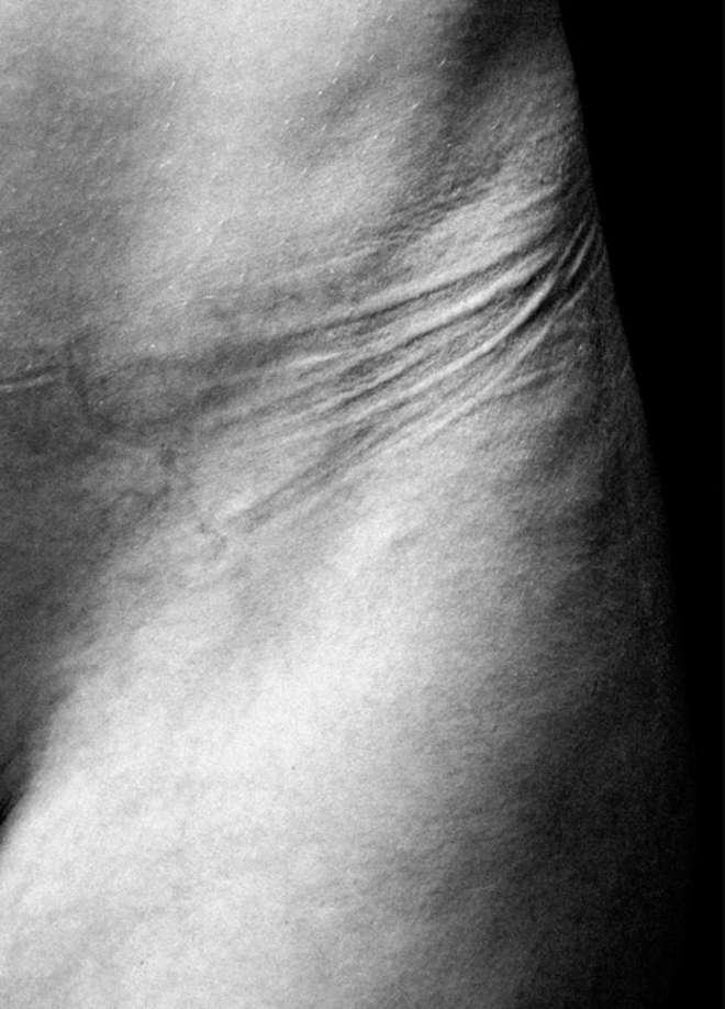 Abiti stretti, ecco cosa succede al corpo quando li indossiamo FOTO