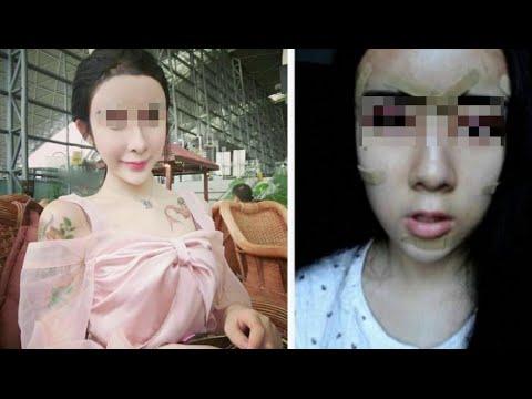 Chirurgia estetica a 15 anni per riconquistare l'ex. Il caso di Lee Hee Danae VIDEO