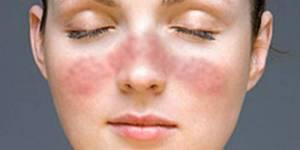 Lupus, malattia autoimmune che preferisce le donne. Diagnosi e cure