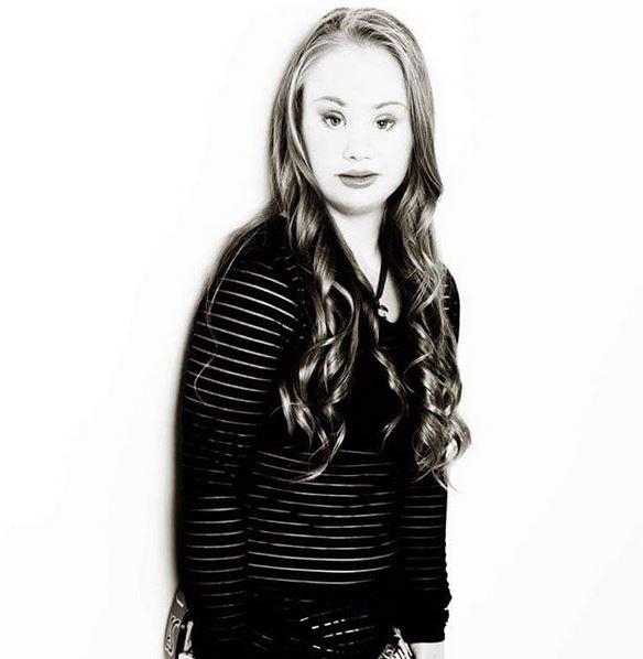 Maddy Stuart: 18enne con la sindrome di Down diventa una modella FOTO