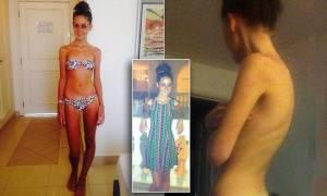Chantelle, 21 anni, pesa 38 chili: ma per i medici è sana, niente cure