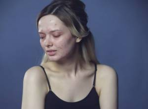 Em Ford, la blogger con l'acne commuove il web VIDEO