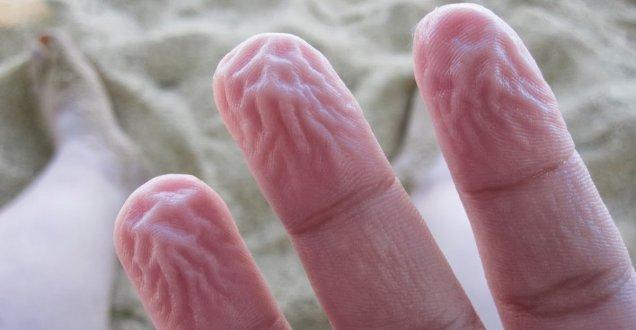 Dita nell'acqua, ecco perché la pelle si raggrinzisce