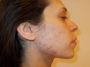 Nozze da incubo: devastata dall'acne poco prima del matrimonio
